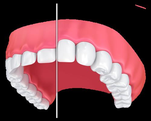 tratament gingivita omniadental